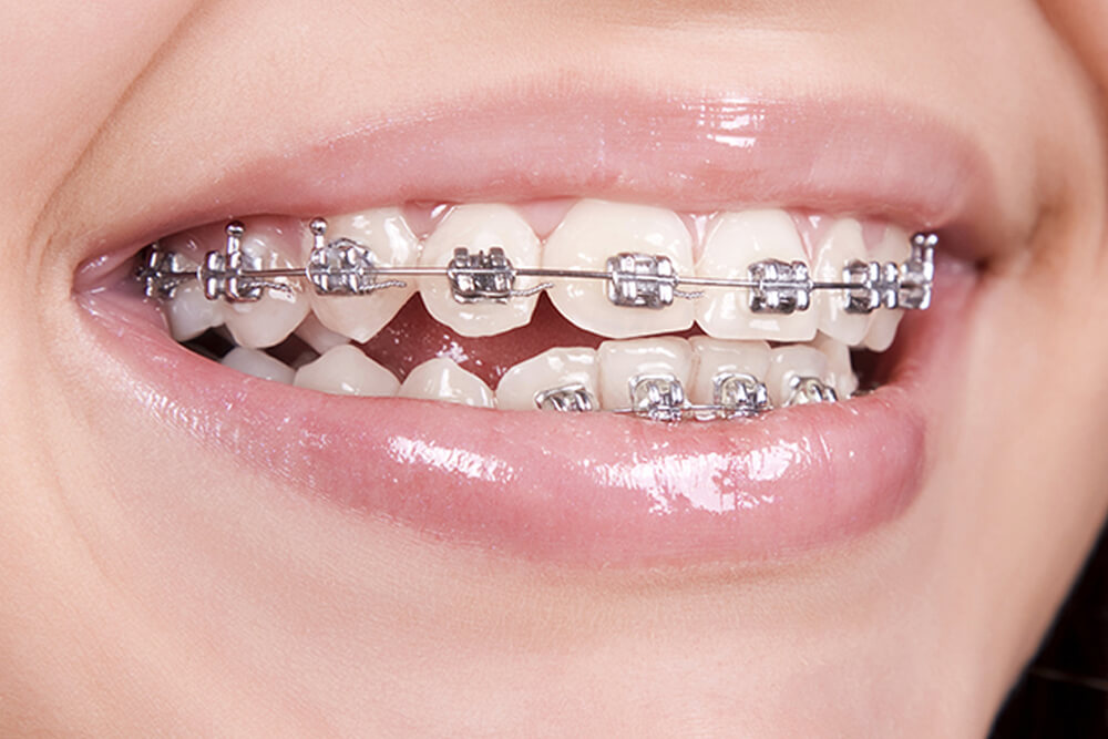 metal-braces-orthodontics-services