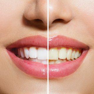 Teeth Whitening In Dubai